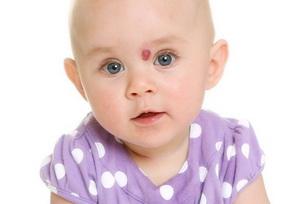 Лечение гемангиомы у детей